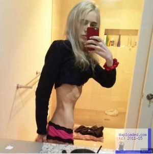 Weight Loss Horror: Shocking Story Of How This Girl Refused To Eat And Drink Anything For A Week Because She Wanted To Lose Weigh